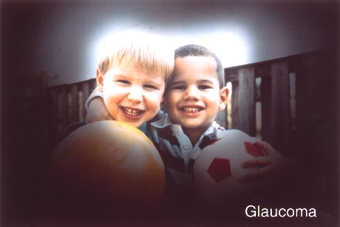 vision-with-glaucoma